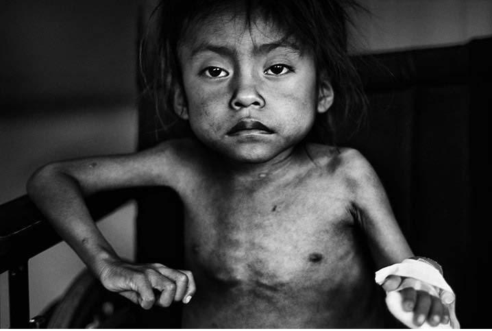 Παιδί στην Ασία, σκελετωμένο και άρρωστο από την έλλειψη φαγητού
