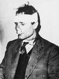 Ο Γ. Τσαρουχάς βαριά τραυματισμένος τη μέρα που δέχτηκε δολοφονική επίθεση ο Γρηγόρης Λαμπράκης (22/5/1963)