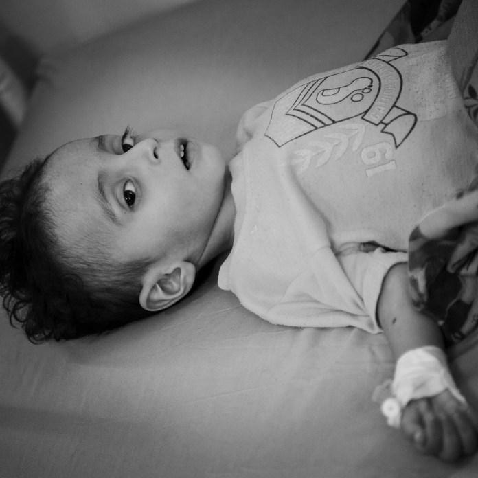 Ο μικρός Αλάα υπέφερε από υποσιτισμό. Τη φωτογραφία τράβηξαν μέλη του Παγκόσμιου Οργανισμού Τροφίμων (ΟΗΕ). Ο Αλάα πέθανε δυό μέρες μετά.