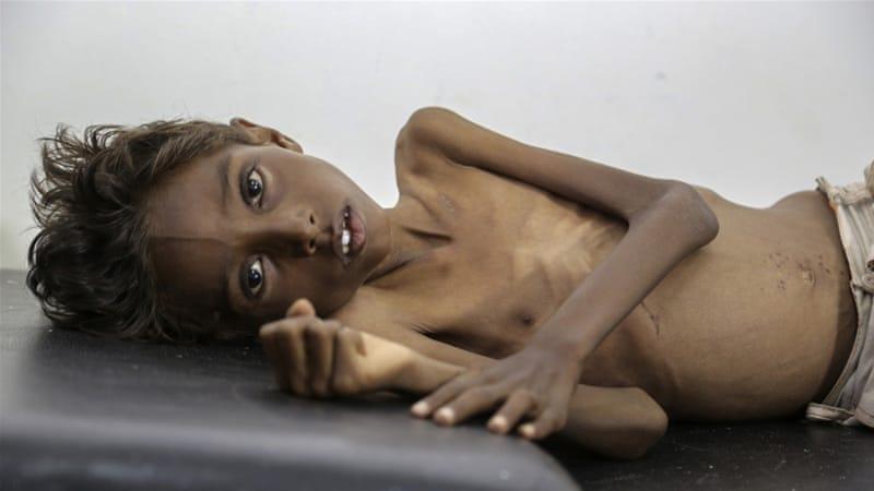 yemen 8