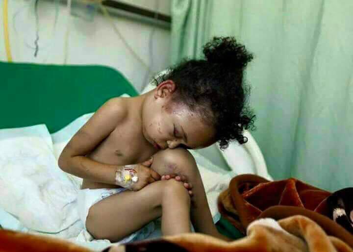 Μπουτάινα Μαχάμαντ Μανσούρ, 3 ετών. Μοναδική επιζήσασα μιας οικογένειας οκτώ ατόμων που ξεκληρίστηκε απ' τους βομβαρδισμούς.