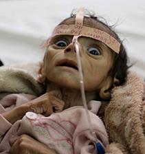 starving-baby-yemen (1)