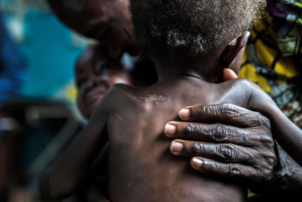 Λαϊκή Δημοκρατία Κονγκό: Τα υποσιτισμένα δίδυμα ηλικίας 17 μηνών έφτασαν στο κέντρο υγείας της Ντιτεκεμένα με τους παππούδες τους. Κρύβονταν στο δάσος επί πέντε μήνες, όταν ένοπλοι επιτέθηκαν στα χωριά. Οι γονείς τους σκοτώθηκαν και τα μωρά έχουν εμφανή στο σώμα τους τραύματα από μαχαίρι. (Σεπτέμβριος 2017) πηγη: Marta Soszynska/MSF