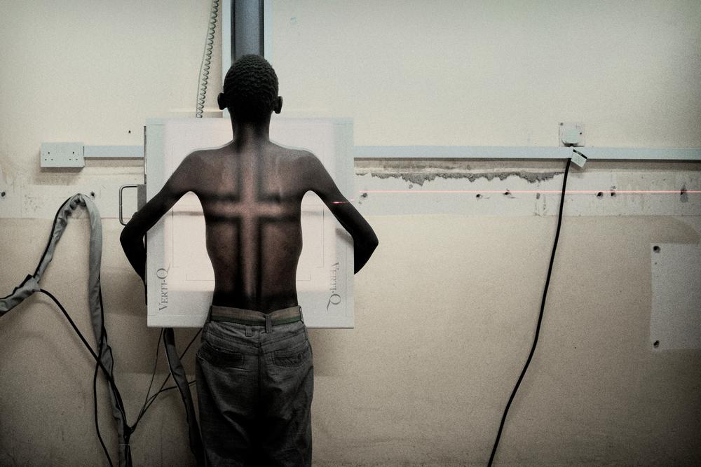 Μαλάουι: Ο 19χρονος Σιμπαζάκο, ασθενής με HIV και φυματίωση ετοιμάζεται για ακτινογραφία στο νοσοκομείο στην επαρχία Eνσάντζε. Αναγκάστηκε να εγκαταλείψει το σχολείο λόγω οικονομικών προβλημάτων. Έχασε και τους δυο του γονείς και τώρα ζει με τον μεγαλύτερο αδελφό του. «Πονάω πολύ στα πλευρά μου. Κάνω τη θεραπεία μου, αλλά η υγεία μου δεν βελτιώνεται» λέει. (Ιούνιος 2017) πηγη:Luca Sola
