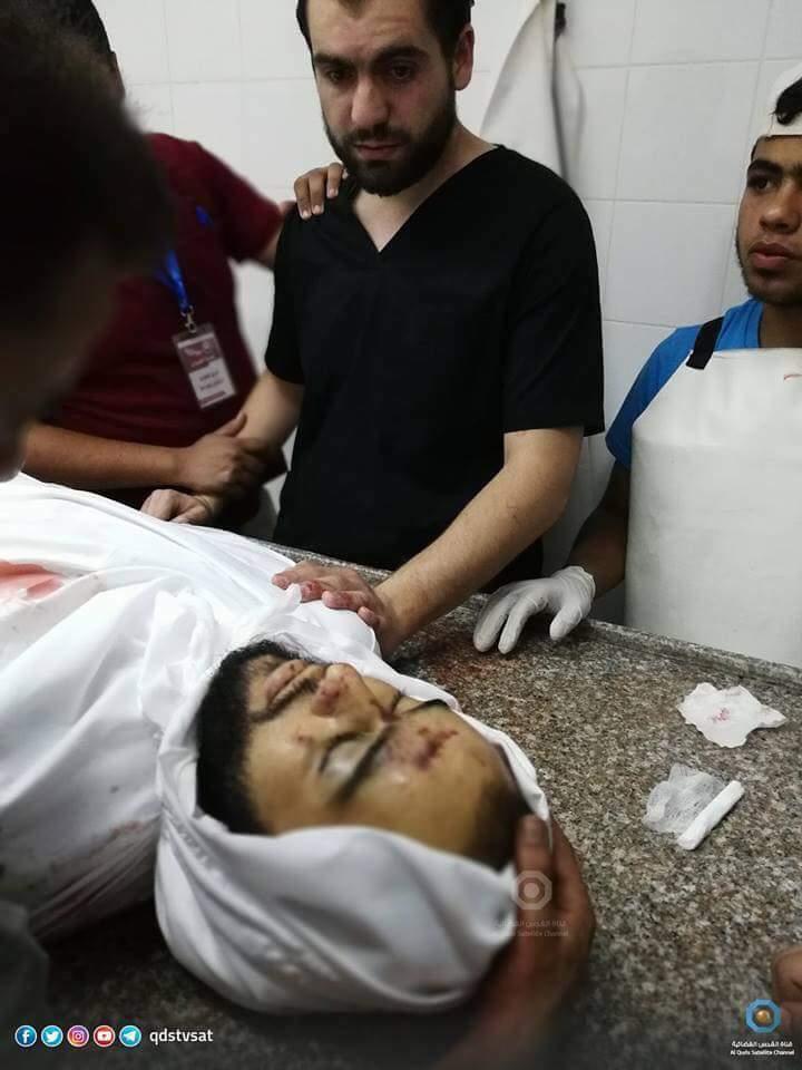 Ο Παλαιστίνιος γιατρός Motasem al-Nono ενώ είναι σε υπηρεσία εξετάζει το άψυχο σώμα του αδελφού του Motaaz al-Nono ο οποίος δολοφονήθηκε από Ισραηλινούς ελεύθερους σκοπευτές στη σημερινή διαδήλωση