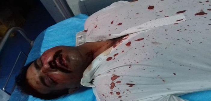 Μενίδι: Φασιστοειδή επιτέθηκαν και τραυμάτισαν δύο Πακιστανούς εργάτες