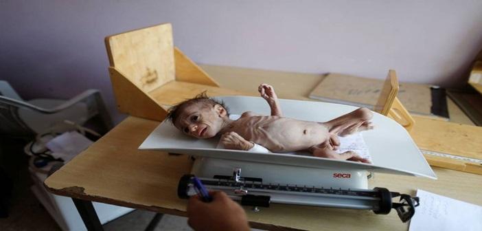 Υεμένη: Και εκεί η ανθρωπότητα εξαθλιώνεται