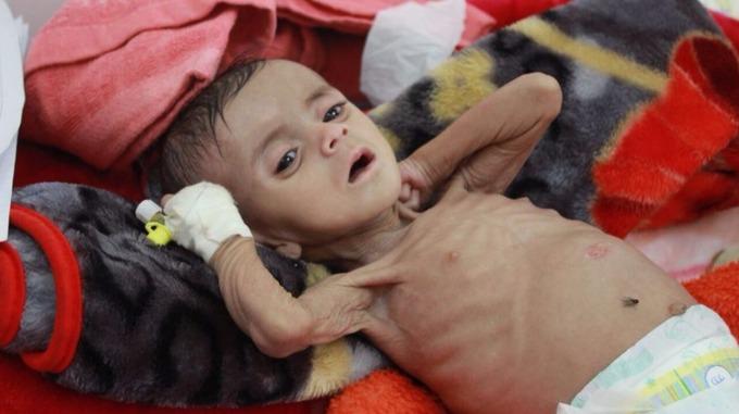 Yemen kid 1