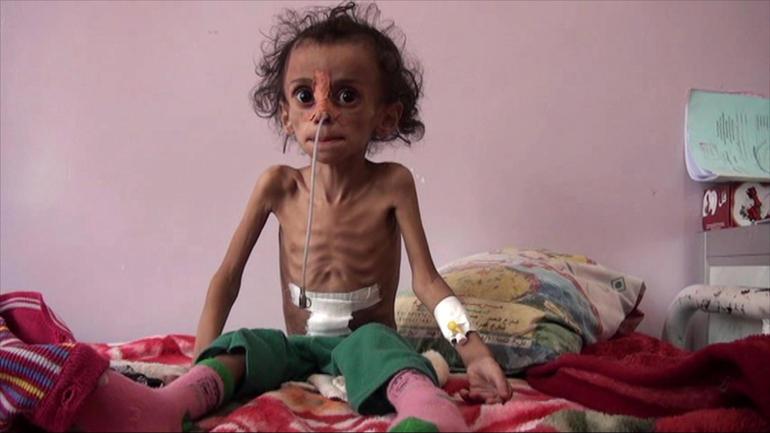 yemen kid 4
