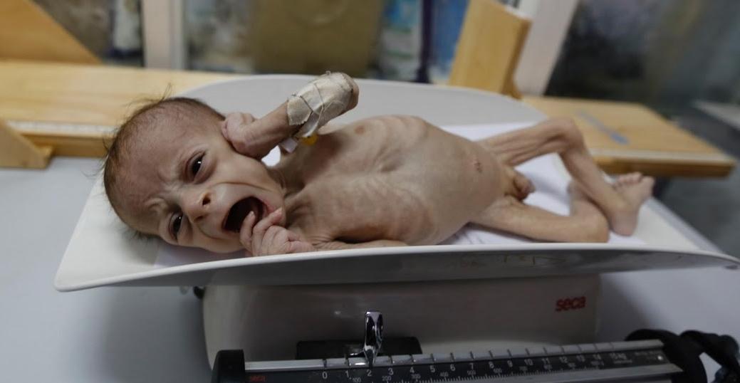 yemen-starting-child1