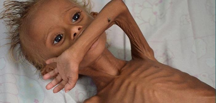 Οι θάνατοι παιδιώντης Υεμένης